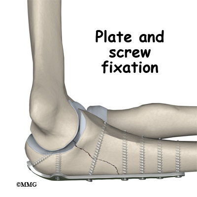 how to know tgat fracture is healed completely