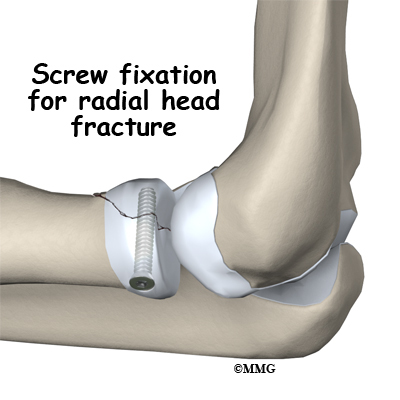 Image result for fracture radial head