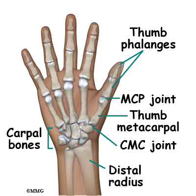 Adult Thumb Metacarpal Fractures Midwest Bone And Joint Institute