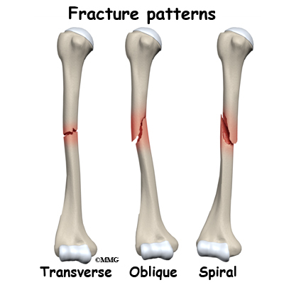 adult humerus shaft fractures - midwest bone and joint institute, Human Body