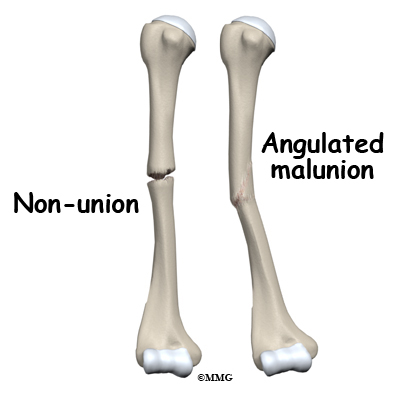 Adult Humerus Shaft Fractures - Midwest Bone and Joint Institute