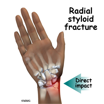 Ulnar Styloid Pictures To Pin On Pinterest Pinsdaddy
