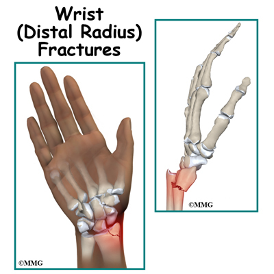Image result for Distal Radius Fracture