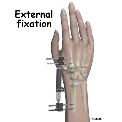 Adult Wrist Fractures - Midwest Bone and Joint Institute