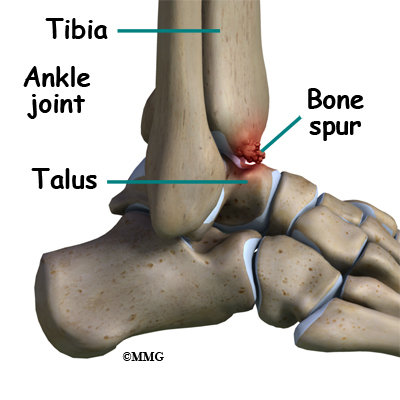 A Patient's Guide to Ankle Arthroscopy | Houston Methodist