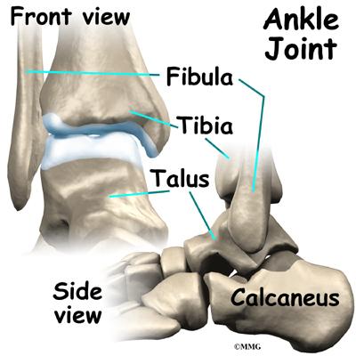 Ankle Fusion Orthogate