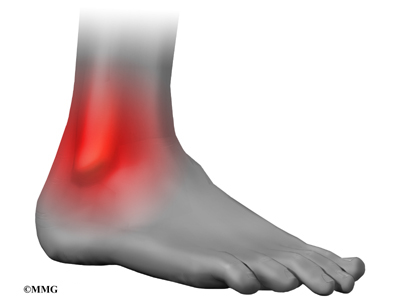 High Ankle Sprain (Ankle Syndesmosis) | Houston Methodist