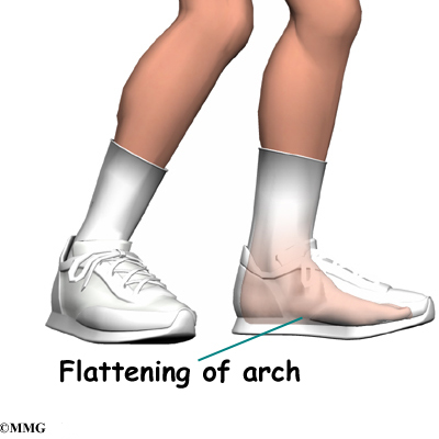 Can Also Cause Posterior Shin Splints As The Foot Flattens Out With Each Step Tibialis Muscle Gets Stretched Causing It To Repeatedly
