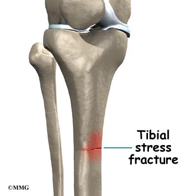 Shin Splints Orthogate