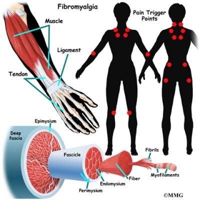 http://www.eorthopod.com/images/ContentImages/arthritis/arthritis_fibromyalgia/arthritis_fibromyalgia_fibromyalgia.jpg