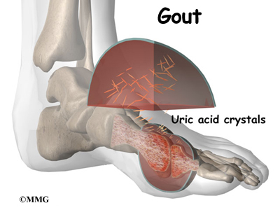 Natural Gout Treatment Which Vitamins