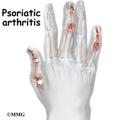 Psoriatic Arthritis Orthogate