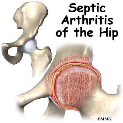 septic arthritis after steroid injection