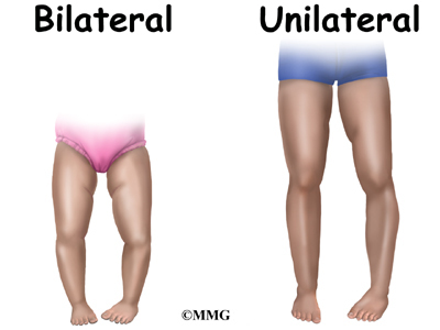 1644d5ef5a However patients with adolescent tibia varum usually complain of pain along  the medial side of the knee. The bowed appearance of the lower legs ...