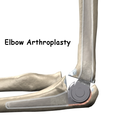 Artificial Joint Replacement of the Elbow | Orthogate