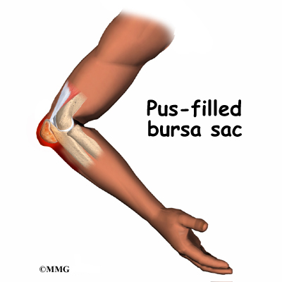 olecranon bursitis causes pain and swelling in the area at the tip of