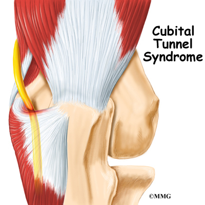 Ulnar Nerve Cubital Tunnel Syndrome Houston Methodist