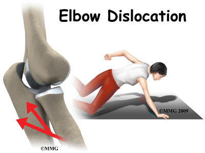 A Patients Guide to Elbow Dislocation Houston Methodist