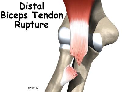 ortho distal biceps tendon rupture