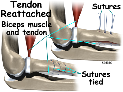 How do you diagnose torn bicep tendons?