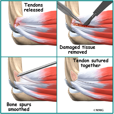 Lateral Epicondylitis (Tennis Elbow) | Orthogate