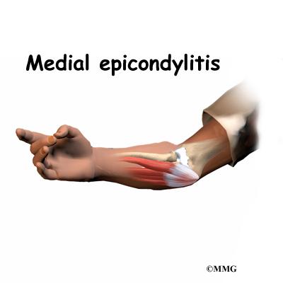 Medial Epicondylitis Golfer S Elbow Orthogate