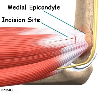 Post Surgery Rehabilitation - Tennis Elbow, Golfers Elbow