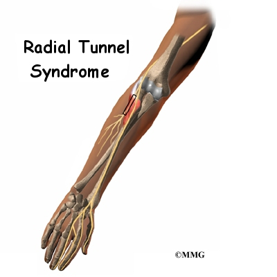 Radial Tunnel Syndrome | Orthogate
