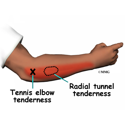 external image elbow_radtun_symptoms01.jpg