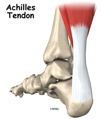 Achilles Tendonitis And Achilles Tendon Rupture Orthogate