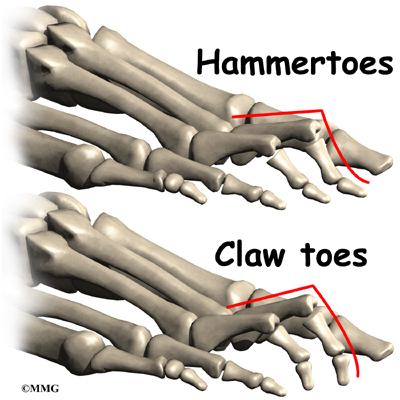 A Guide to Claw Toes and Hammertoes | Houston Methodist