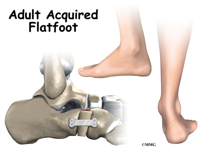 Adult Acquired Flat Foot