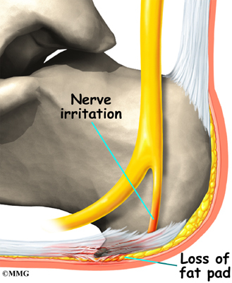 How do you treat foot pain from nerve damage?