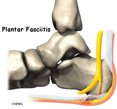 what can be done for plantar fasciitis