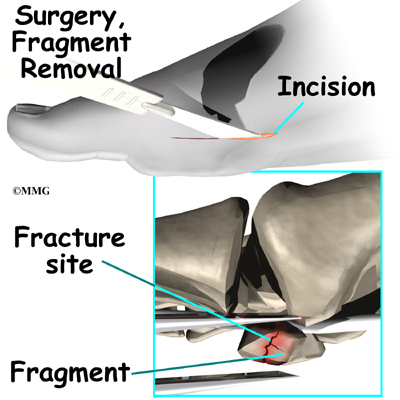 how to know if your toe bone is broken