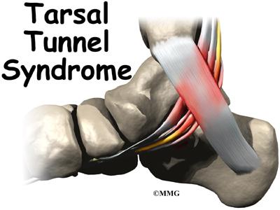 Síndrome Túnel Tarsiano