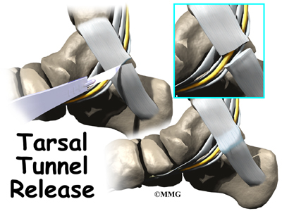 foot_tarsal_tunnel_surgery01.jpg