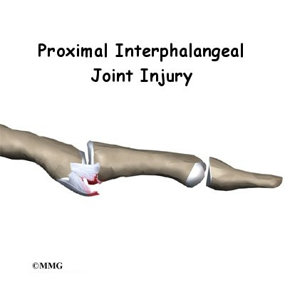 PIP Joint Injuries of the Finger - Orthopedic Surgery, Algonquin, IL ...