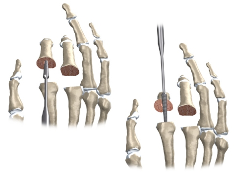 Finger Joint Replacement | Houston Methodist