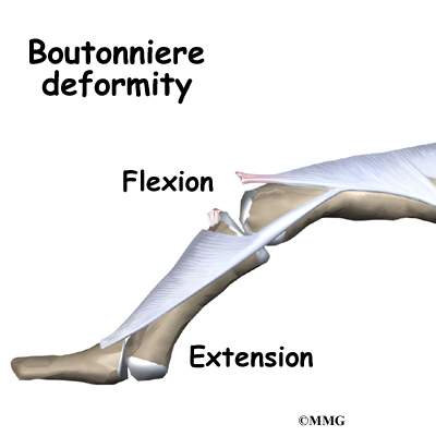 Boutonniere Deformity Of The Finger Orthopedic Surgery