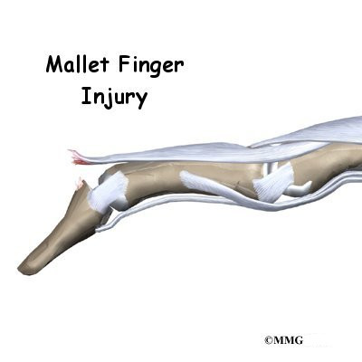 how to fix mallet finger