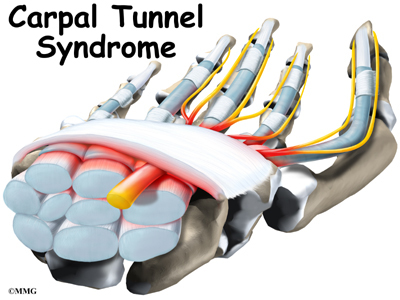 http://www.eorthopod.com/images/ContentImages/hand/hand_carpal_tunnel/hand_carpal_tunnel_intro01.jpg