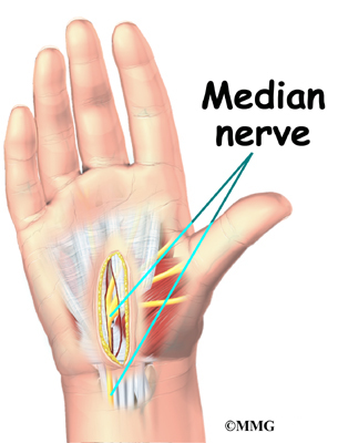 Infection after carpal tunnel release treatment
