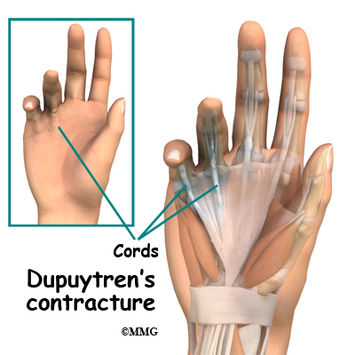 dupuytren's nodule corticosteroid injection