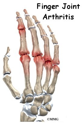 Arthritis of the Finger Joints | Orthogate