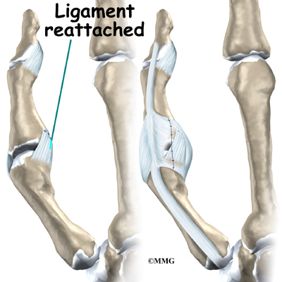 Ligament reattached