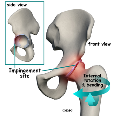 SURG.00109 Surgical Treatment of Femoroacetabular Impingement Syndrome