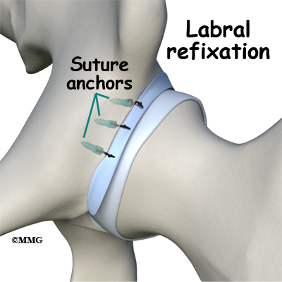Acetabular Labral Tear in the Hip Joint - Fix Your Strained Hip or