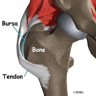 trochanteric bursitis surgery | houston methodist, Human Body