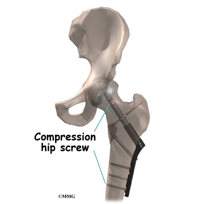 care plan for compression fracture
